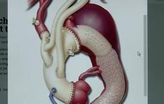 Cứu sống cả mẹ và con sản phụ 33 tuần bị bóc tách động mạch chủ