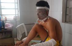 Chùm bóng bay phát nổ, 3 cầu thủ U14 Sông Lam Nghệ An bị bỏng