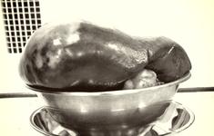 Mổ cắt khối u lách chiếm hết nửa ổ bụng trái nam thanh niên