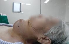 Cắt bỏ khối u tuyến giáp khổng lồ cho cụ bà 85 tuổi