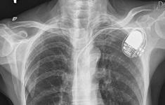 Đặt máy tạo nhịp cứu sống cụ ông bị rối loạn nhịp tim chậm