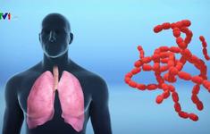 Bệnh viêm phổi do chủng virus mới diễn biến phức tạp