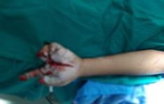 Thêm một bé trai nhập viện với nhiều vết thương do pháo nổ