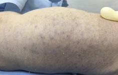 Trẻ sơ sinh tử vong nghi do nhiễm virus CMV