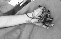 Lấy pin của quạt tích điện ra chế tạo, thiếu niên 14 tuổi cụt 3 ngón tay