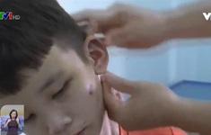 Nhức nhối khi nạn bạo hành trẻ em vẫn diễn ra