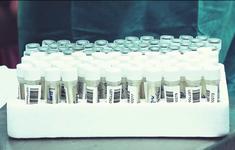 (Cập nhật) Kết quả xét nghiệm của tất cả F1, F2 liên quan các ca bệnh COVID-19 tại TP.HCM