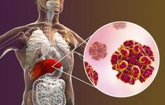 Đâu là nguyên nhân gây viêm gan mạn tính?