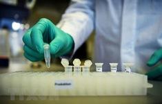 Australia phát triển bộ xét nghiệm miễn dịch của người mắc bệnh COVID-19