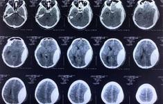 Tháo nắp sọ gửi ngân hàng mô, cứu bệnh nhân chấn thương sọ não