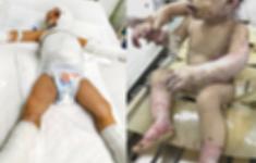 Cấp cứu hai trẻ bị bỏng xăng nặng