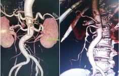 Giữ nguyên vẹn ruột cho bệnh nhân bị tắc hoàn toàn động mạch mạc treo hiếm gặp