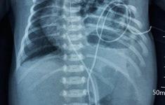 Sắp xếp lại nội tạng ở bé sơ sinh mắc thoát vị hoành bẩm sinh