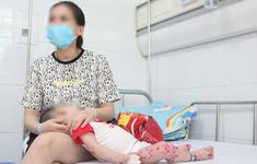 Bệnh viện Nhi Trung ương điều trị hơn 300 trẻ mắc tay chân miệng
