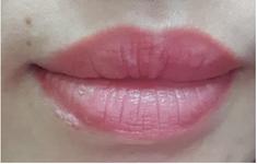 Nổi ban đỏ toàn thân do nhiễm herpes khi xăm môi
