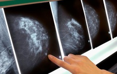 Hiệu quả bất ngờ khi kết hợp vaccine và thuốc miễn dịch để chống ung thư vú