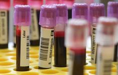 Hiếm gặp: Hết tế bào ung thư sau khi mắc COVID-19
