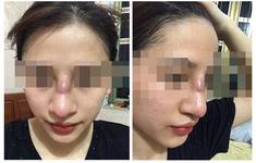 Cô gái trẻ suýt thủng mũi sau khi nâng mũi tại spa