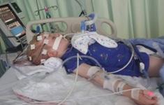 CDC cảnh báo cha mẹ cẩn trọng chứng bệnh viêm tủy mềm cấp tính ở trẻ em