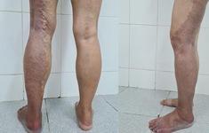 Xuất hiện các bớt ở chân, người phụ nữ không ngờ mắc bệnh nguy hiểm