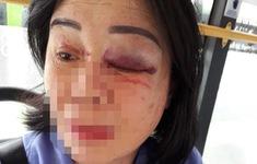 Nhân viên xe bus bị đánh bầm mắt vì nhắc khách mở nhạc nhỏ