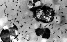Thêm một ca tử vong, nguy cơ bùng phát dịch hạch rình rập Mông Cổ