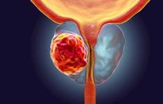 Australia đột phá trong điều trị ung thư tuyến tiền liệt
