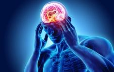 5 lý do gây đau đầu thường xuyên mà bạn không nghĩ đến