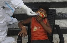 Hơn 31 triệu ca mắc, 954.000 người tử vong vì COVID-19 trên toàn cầu