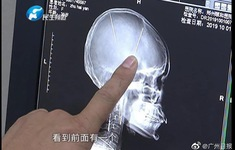 Sốc khi phát hiện 2 chiếc kim châm cứu găm sâu trong não bệnh nhân