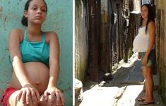 Tình trạng mang thai ở tuổi vị thành niên đáng lo ngại tại Mỹ Latinh
