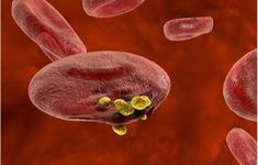 Phát hiện biến thể máu hiếm giúp ngăn bệnh sốt rét
