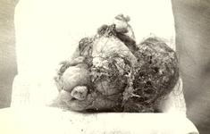 Cắt bỏ u quái chứa tóc, răng, xương hàm nằm trong cơ thể bé gái 7 tuổi