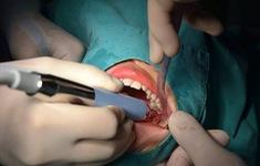 Có nên nhổ 4 răng khôn cùng lúc hay không?