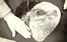 Loại bỏ khối u buồng trứng chứa 7.000ml dịch nhầy cho bệnh nhân 16 tuổi