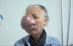 Cắt bỏ khối u lớn trên mặt cho bệnh nhân 74 tuổi