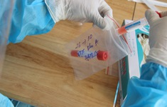 Một bệnh nhân cách ly tại Bệnh viện Đa khoa Hà Đông dương tính với SARS-CoV-2