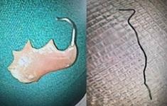 Lấy cọng kẽm, răng giả trong dạ dày bệnh nhân