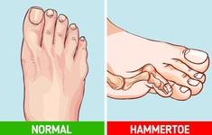 Tác hại khôn lường khi mang giày cao gót hàng ngày