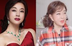 """Lưu Hiểu Khánh phản pháo trước tin """"dái tai biến dạng vì phẫu thuật thẩm mỹ"""": Phụ nữ Trung Quốc từ bỏ bản thân quá sớm!"""
