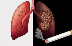 Thuốc lá cướp đi mạng sống của nhiều người hơn COVID-19