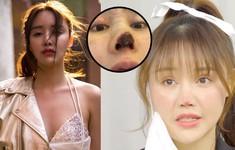 Nữ diễn viên Trung Quốc bị hoại tử mũi do phẫu thuật khuyên các cô gái cẩn thận khi làm đẹp