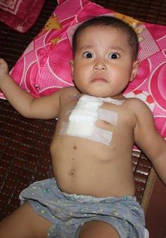 Xót xa cháu bé 2 tuổi mang nhiều căn bệnh quái ác