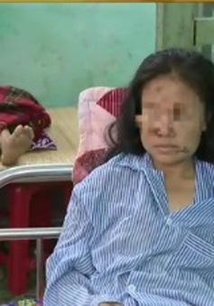 Kẻ cắt gân tay, chân vợ tại Bắc Giang ra đầu thú