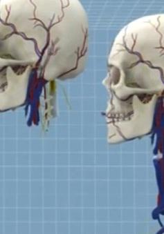Phẫu thuật cấy ghép đầu người - Đột phá mới của y học?
