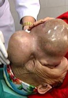 Phẫu thuật thành công khối u quái gần 4kg trên mặt