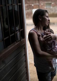 """Brazil """"căng mình"""" đối phó virus Zika gây teo não ở trẻ nhỏ"""