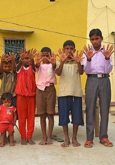 Gia đình Ấn Độ với hàng loạt thành viên có 24 ngón tay chân