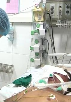 Kinh hoàng bệnh nhân hoại tử chân tay do nhiễm khuẩn liên cầu lợn