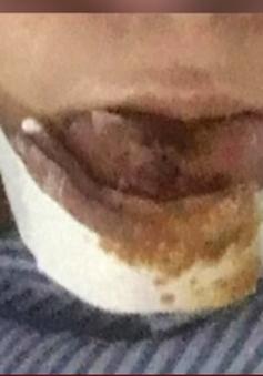 Thanh tra việc nạn nhân phải cắt bỏ môi do biến chứng sau phẫu thuật thẩm mỹ